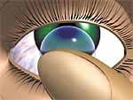 Drawing of soft contact lens insertion