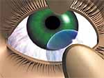 Drawing of soft contact lens removal